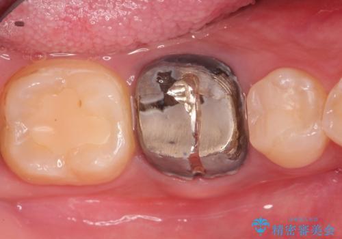奥歯が痛い オールセラミッククラウンの症例 治療前
