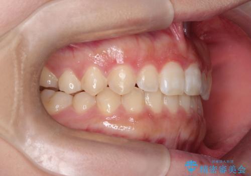 【開咬】短期間でインビザライン矯正の治療後