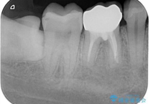 奥歯が痛い オールセラミッククラウンの治療後