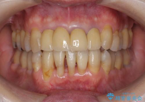 矯正を含む全顎治療の症例 治療後