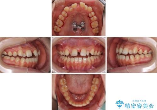 外科矯正は受けたくない 上顎骨拡大による妥協的な受け口治療の治療中
