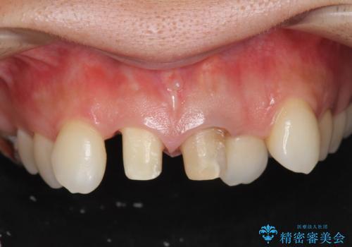 子供の頃にぶつけた前歯 根管治療から行うセラミック治療の治療中