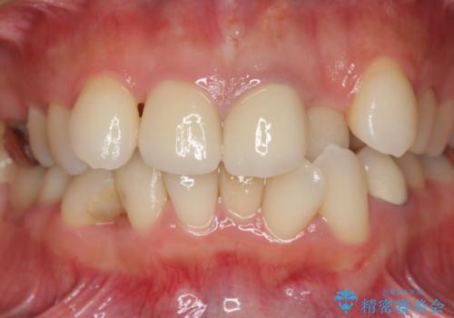 子供の頃にぶつけた前歯 根管治療から行うセラミック治療の治療後