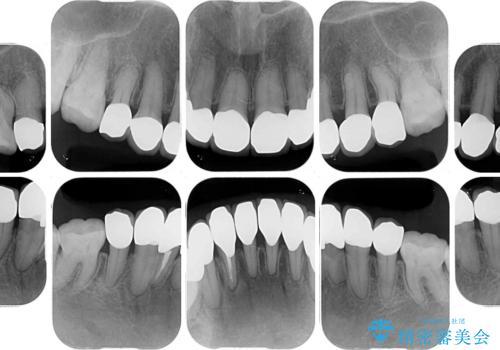 矯正の後戻りと変色歯を治したい 総合歯科診療の治療後