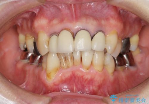 矯正を含む全顎治療の症例 治療前
