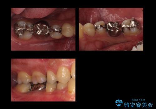 虫歯がひどく抜歯 奥歯をブリッジにの治療前