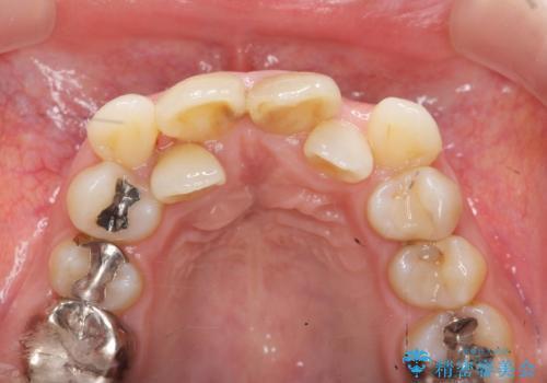 子供の頃にぶつけた前歯 根管治療から行うセラミック治療の治療前