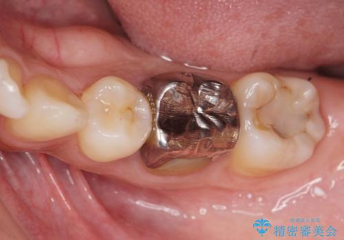 笑った時に目立つ銀歯を白くしたいの症例 治療前