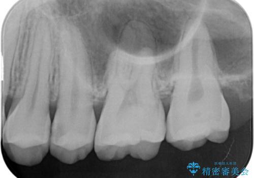 【セラミックインレー】虫歯の治療の治療前