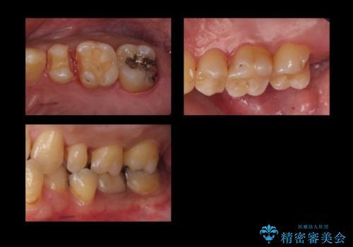 奥歯の詰め物のやりかえ セラミックインレー、ゴールドインレーの治療中
