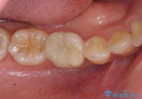目立つ銀歯を白くしたいの症例 治療後