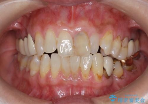 前歯の変色 セラミッククラウンによる審美回復の治療前