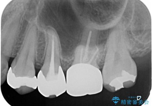 笑うとキラリと光る銀歯を何とかしたい:適合の良いセラミックで長持ちする歯にの治療前