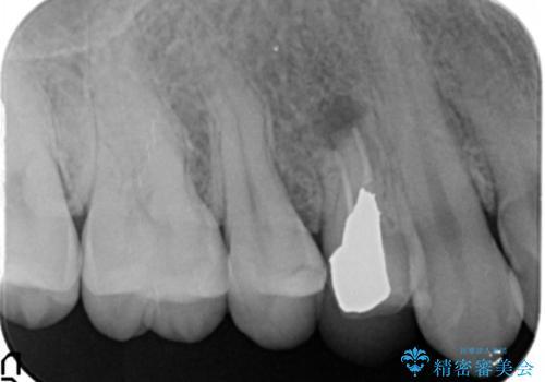 他院の根の治療で一向に治らない、さらに歯根を切ってもらったが良くならないの治療前