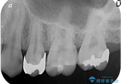 奥歯の詰め物のやりかえ セラミックインレー、ゴールドインレーの治療前