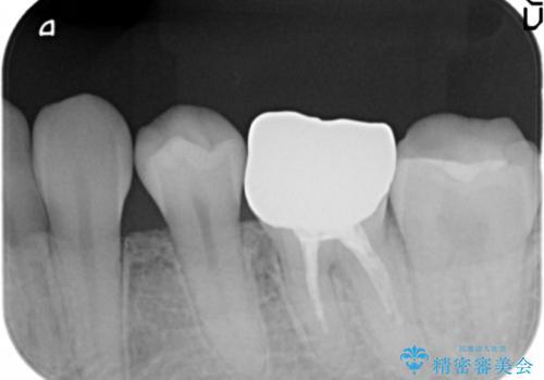 笑った時に目立つ銀歯を白くしたいの治療前