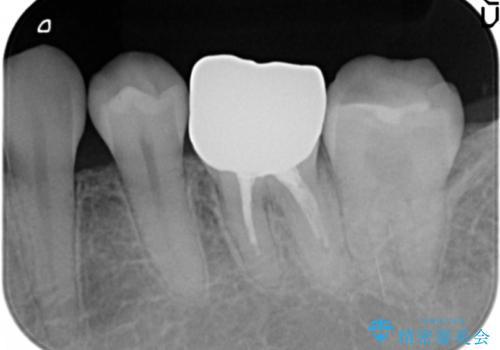 笑った時に目立つ銀歯を白くしたいの治療後