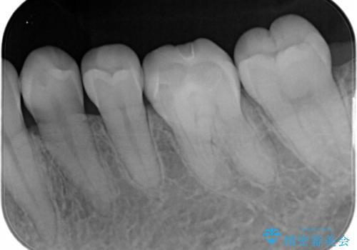適合のよいセラミックで自分の歯となじむ自然な仕上がりにの治療後