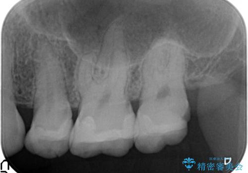 オールセラミッククラウン 欠けた歯の治療の治療前