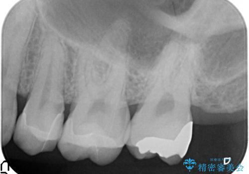 奥歯の詰め物のやりかえ セラミックインレー、ゴールドインレーの治療後