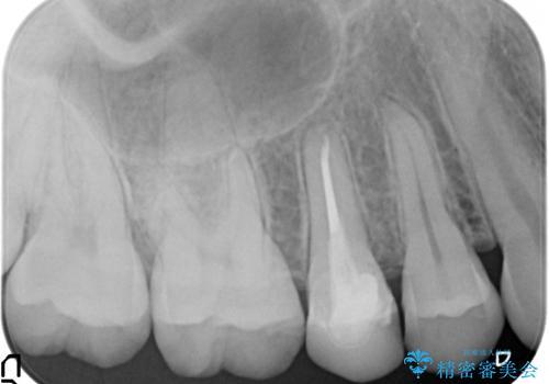 歯の高さがなく、しょっちゅう外れる 他院で治療途中だが病院を変えたいの治療前