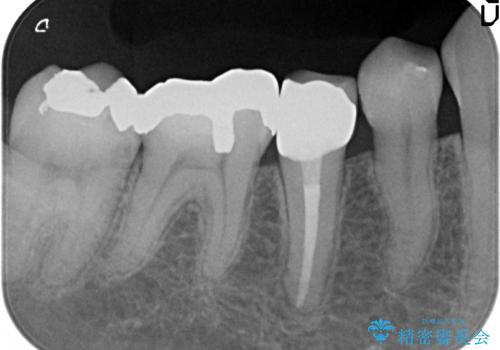 オールセラミッククラウン 違和感のある奥歯の治療の治療後