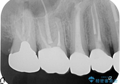 オールセラミッククラウン ブリッジによる欠損歯の補綴の治療後