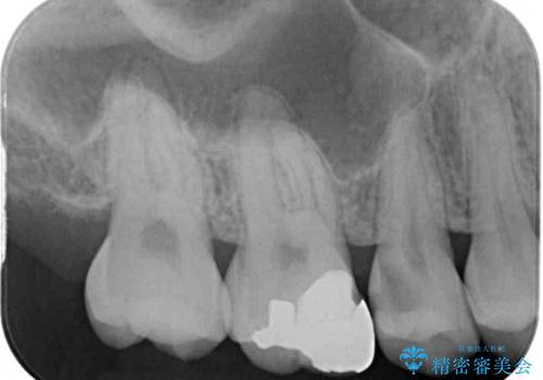 虫歯がしみる セラミックインレーによる修復治療の治療前