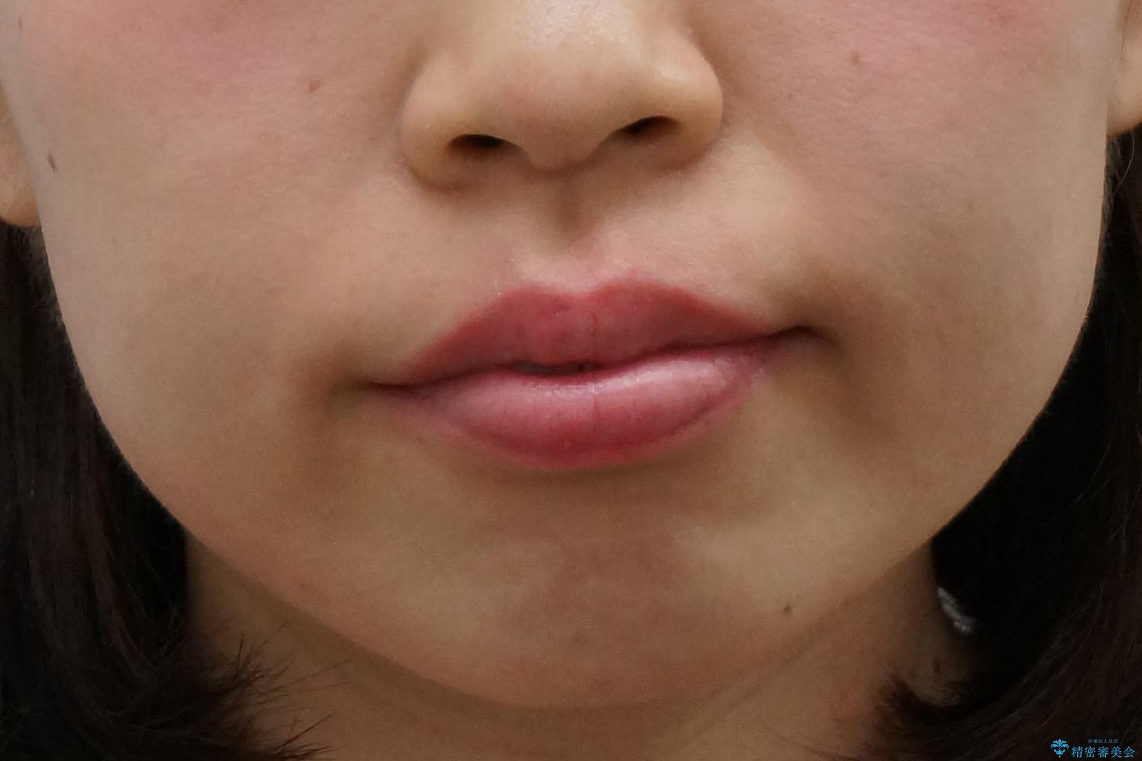 前歯のがたつき インビザラインでの治療前(顔貌)