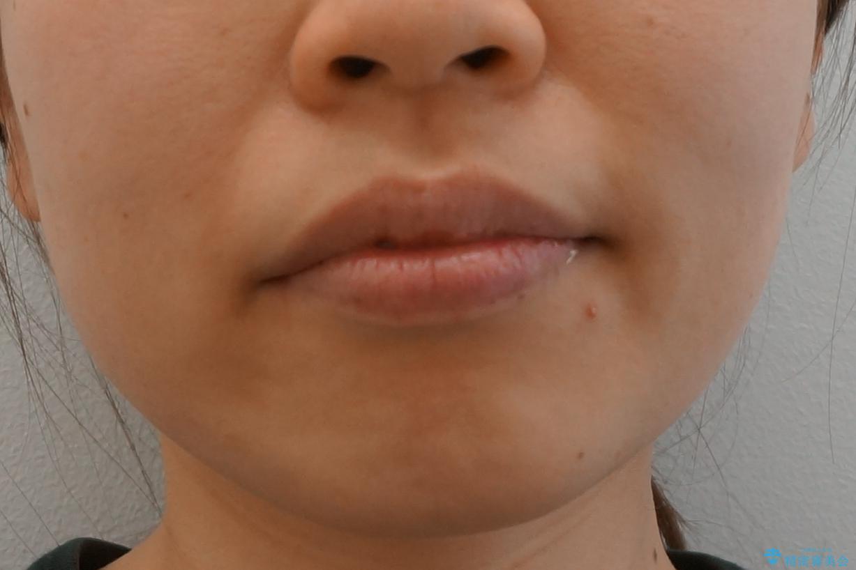 前歯のがたつき インビザラインでの治療後(顔貌)