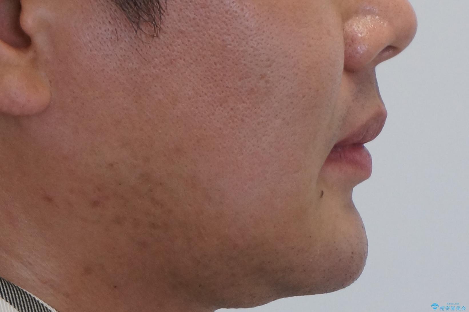 すきっ歯・出っ歯 コンプレックスの前歯を治したい 目立たない方法で セラミック治療は不可能な症例の治療後(顔貌)