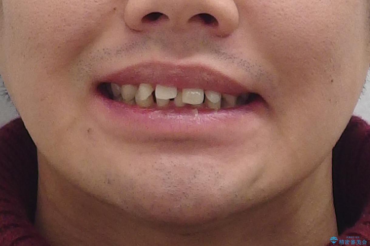 すきっ歯・出っ歯 コンプレックスの前歯を治したい 目立たない方法で セラミック治療は不可能な症例の治療前(顔貌)