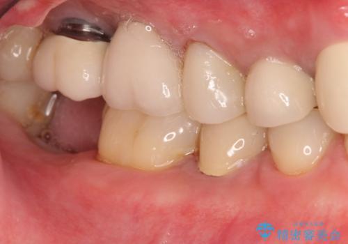 右下の奥歯を抜歯 インプラント治療による咬合回復の治療中