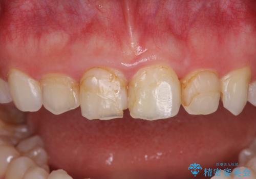気になる前歯を美しく マウスピース矯正とセラミッククラウンの治療中