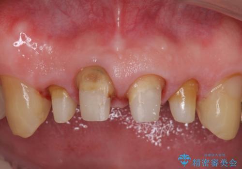 オールセラミッククラウン セラミックで前歯の見た目を改善の治療中