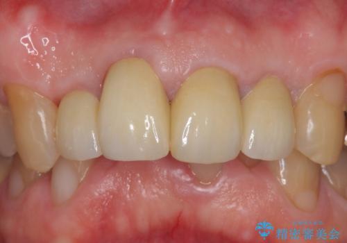 オールセラミッククラウン セラミックで前歯の見た目を改善の治療後