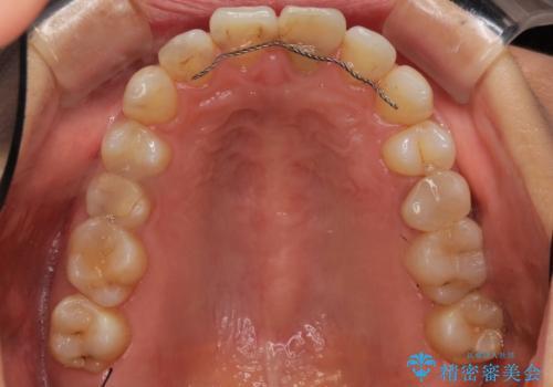 口元が出てるのが気になる 抜歯矯正でしっかりと前歯をさげてすっきりした口元への治療前