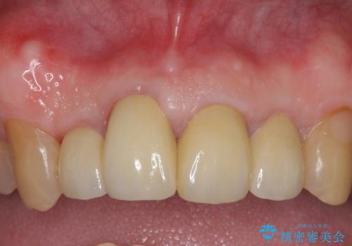 オールセラミッククラウン セラミックで前歯の見た目を改善の症例 治療後