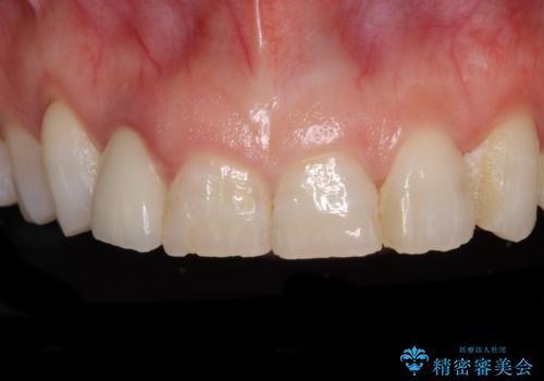 歯肉が腫れている前歯 外科処置を併用したオールセラミッククラウンの症例 治療前