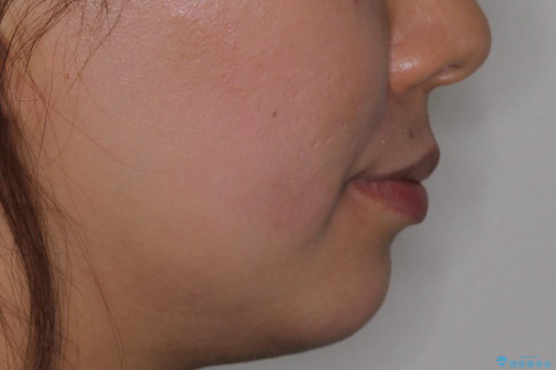 口元が出てるのが気になる 抜歯矯正でしっかりと前歯をさげてすっきりした口元への治療前(顔貌)