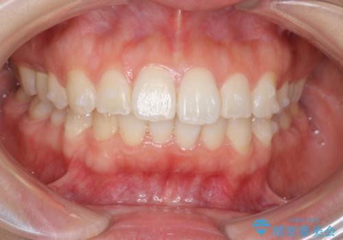 前歯のがたつき インビザラインでの治療中
