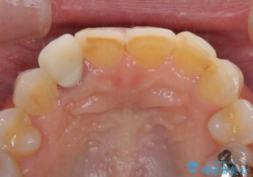 歯肉が腫れている前歯 外科処置を併用したオールセラミッククラウンの治療前