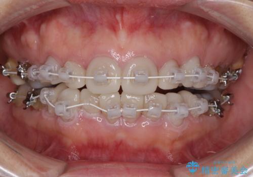 矯正の後戻りと変色歯を治したい 総合歯科診療の治療中