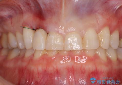 歯肉が腫れている前歯 外科処置を併用したオールセラミッククラウンの治療中
