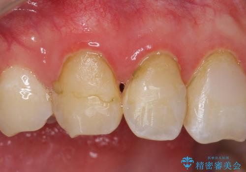 オールセラミッククラウン 色・形が気になる前歯の改善の治療前