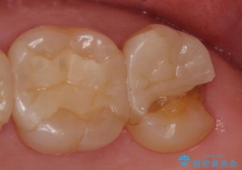オールセラミッククラウン 欠けた歯の治療の症例 治療前