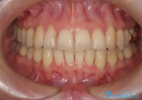 【非抜歯矯正】インビザラインによる矯正の症例 治療後