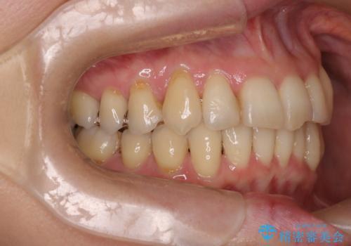 【非抜歯矯正】インビザラインによる矯正の治療後