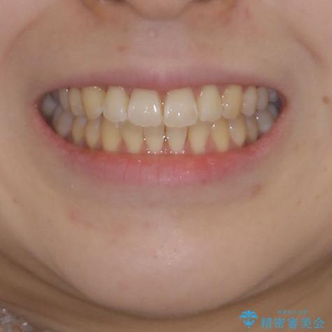 気になるデコボコとオープンバイト インビザラインでの矯正治療の治療後(顔貌)