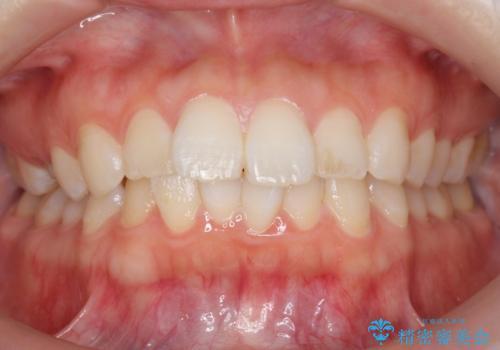 前歯のがたつき インビザラインでの症例 治療前